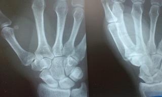 X-ray 001.jpg